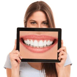 Dental Bridges Owings Mills